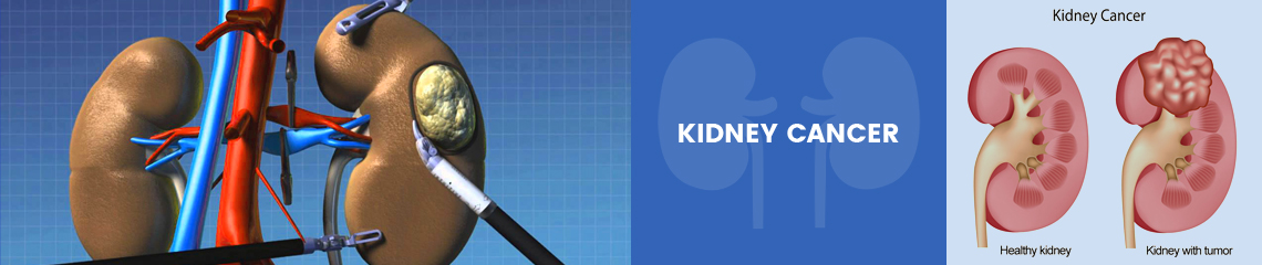 Kidney Cancer Surgery Treatment Total Nephrectomy Treatment For Kidney Cancer
